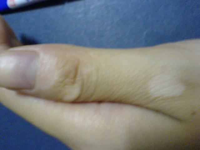 女性手部白癜风病因都有哪些呢