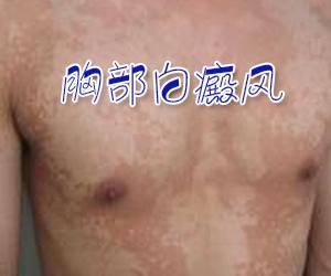 胸部白癜风到底该怎么护理