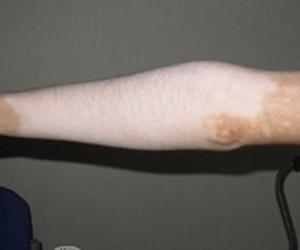 手臂白癜风扩散是什么原因