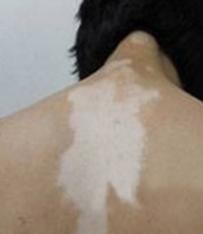 男性白癜风早期都有哪些症状