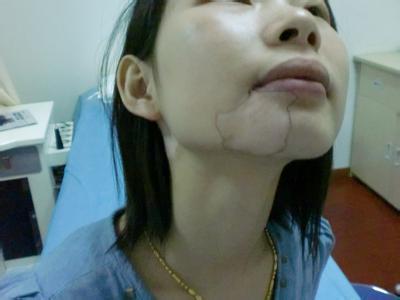 女性白癜风发病常见原因是什么