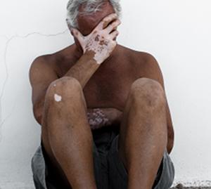 老年白癜风应该如何护理