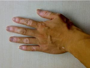 手部白癜风如何治疗