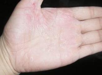 怎么治疗手部出现的白癜风