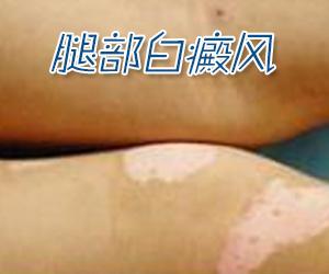 腿部白癜风通常有哪些症状