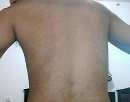 背部白癜风的症状表现是什么