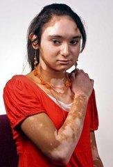 女性白癜风患者夏季怎么护理