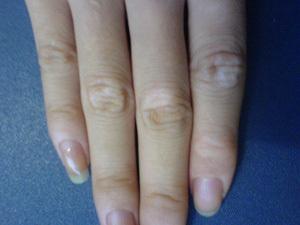 手部白癜风常见危害表现