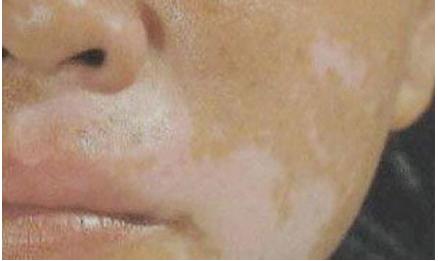 白癜风患者论坛:为什么脸部很容易长白癜风