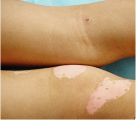 北京治疗白癜风专科医院:腿部白癜风给患者带来哪些危害