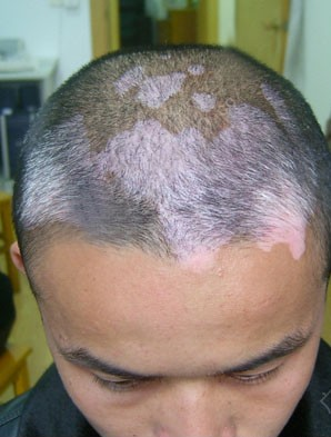 白癜风最好的医院:头部患上白癜风的原因是什么