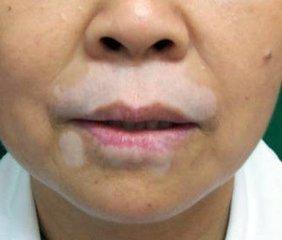 北京治疗白癜风最好的医院:面部出现白癜风该怎么注意